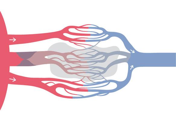 Image 1 of 4: Acute MI
