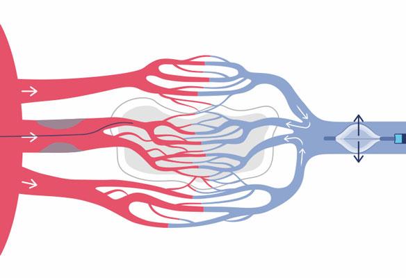 Image 3 of 4: PiCSO Impulse Catheter